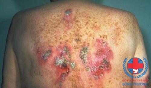Bệnh lậu là gì? Nguyên nhân và cách điều trị nào hiệu quả?
