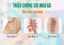 trieu-chung-sui-mao-ga-qua-tung-giai-doan