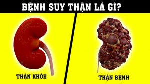 Suy Than O Nam